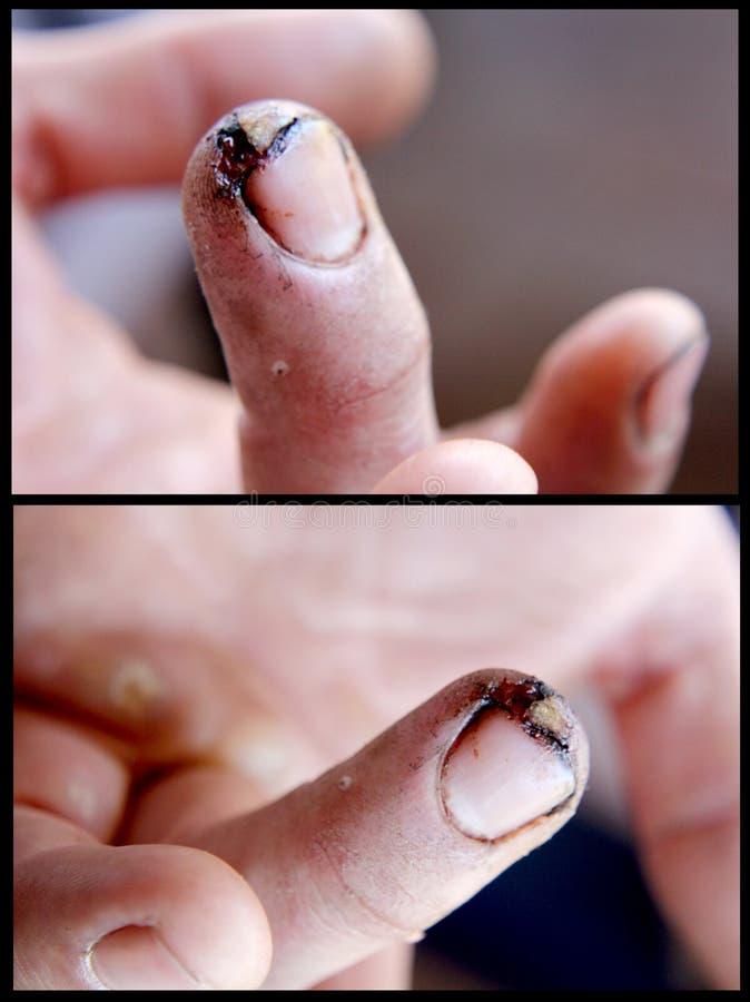 El corte profundo del finger de un poder consideró 1 fotografía de archivo