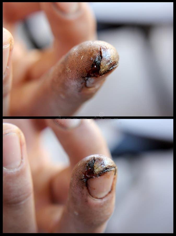 El corte profundo del finger de un poder consideró foto de archivo libre de regalías