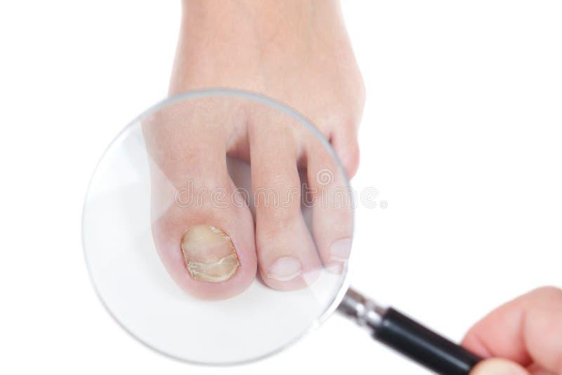 El dermatólogo examina el clavo en la presencia del eczema. imagen de archivo