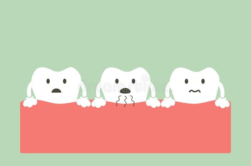 El diente es malo aliento ilustración del vector