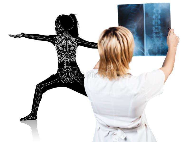 El doctor de sexo femenino mira en la radiografía de la silueta de la niña fotos de archivo libres de regalías