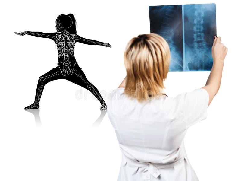 El doctor de sexo femenino mira en la radiografía de la silueta de la niña fotografía de archivo