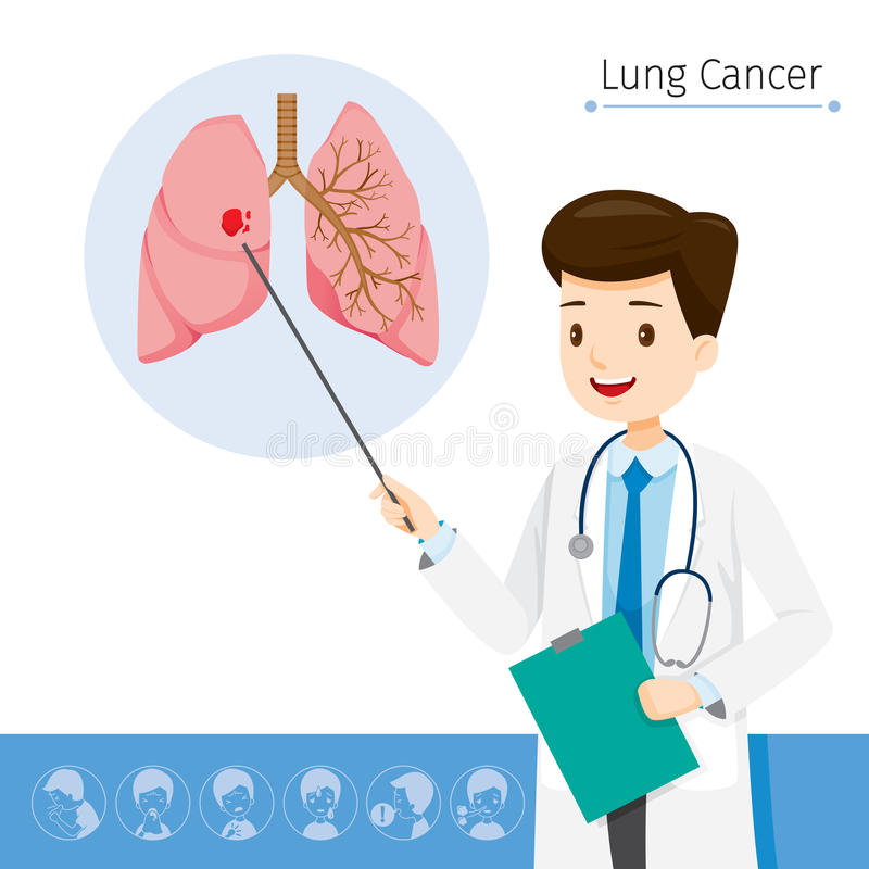 El doctor Describes About Cause a Lung Cancer libre illustration