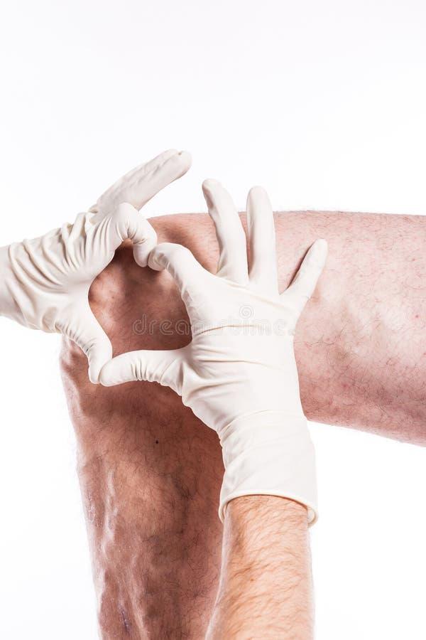 El doctor en guantes médicos examina a una persona con las varices o imagen de archivo libre de regalías
