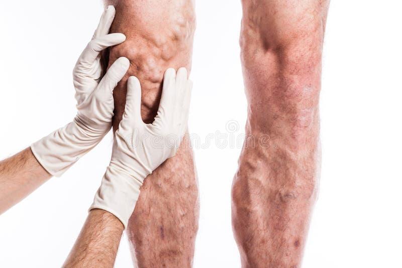 El doctor en guantes médicos examina a una persona con las varices o fotos de archivo