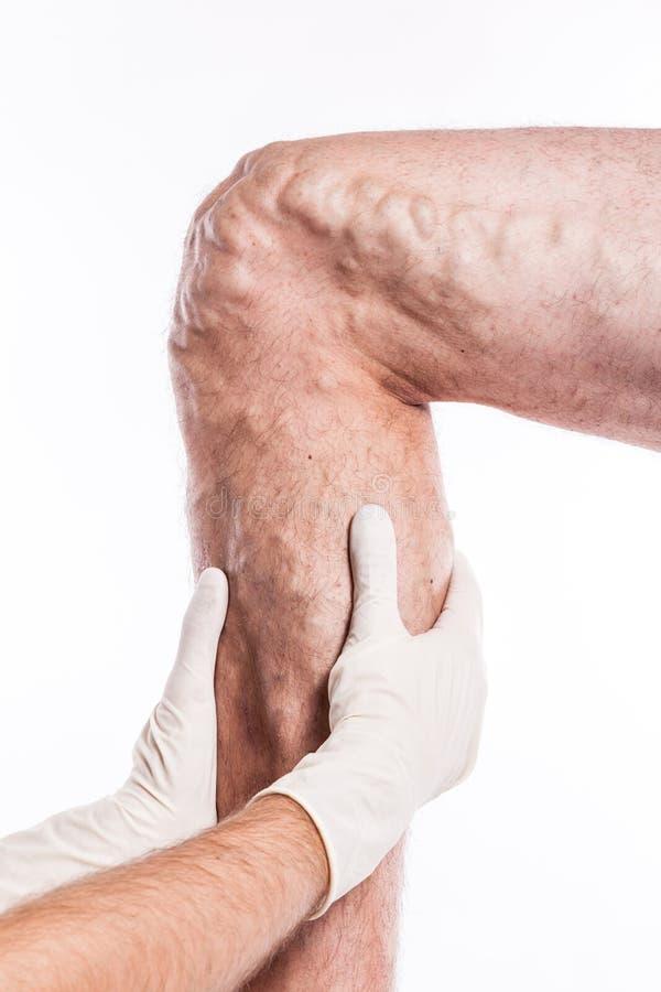 El doctor en guantes médicos examina a una persona con las varices o imágenes de archivo libres de regalías
