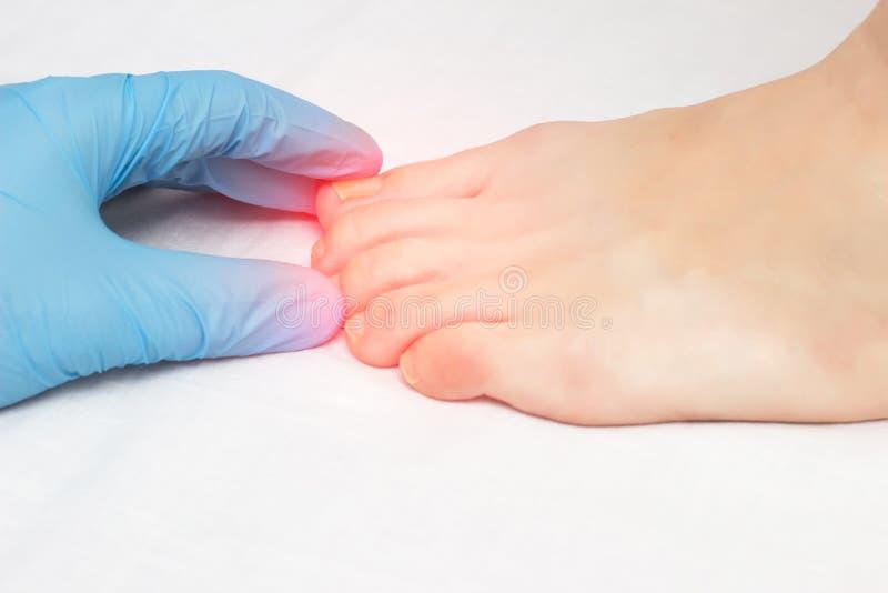 El doctor examina el clavo crecido hacia dentro en la pierna femenina y las enfermedades fungosas, micosis, primer, fondo blanco, imagen de archivo