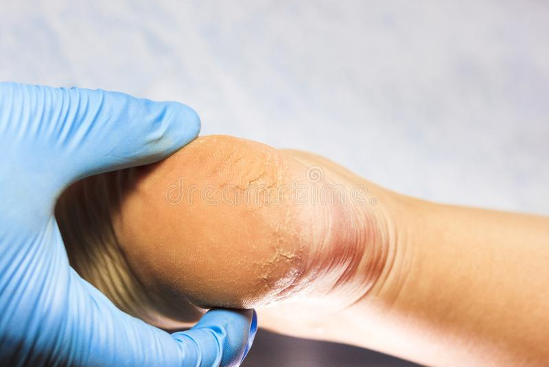 El doctor examina la pierna paciente del ` s en guantes azules El talón se ampolla y se agrieta todo Primer imágenes de archivo libres de regalías