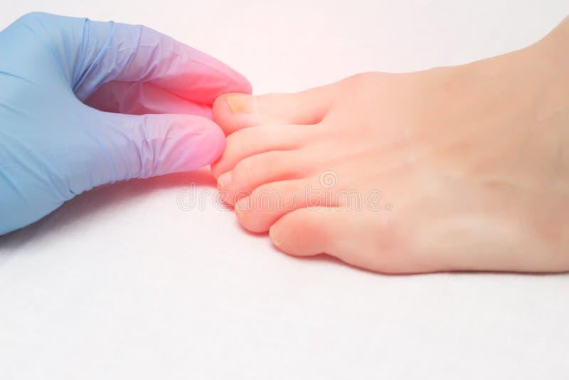 El doctor examina un dedo del pie dolorido infectado con la infección por hongos, primer, onychomycosis, médico imagenes de archivo