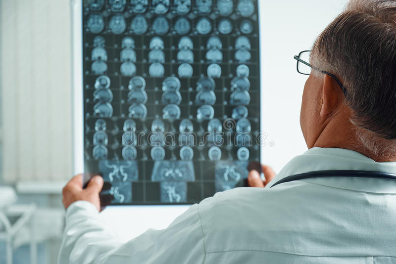El doctor mayor irreconocible examina imagen de MRI foto de archivo libre de regalías
