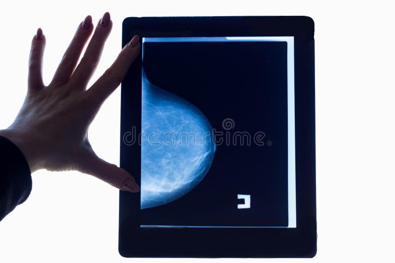 El doctor mira una imagen de la mamografía del pecho foto de archivo