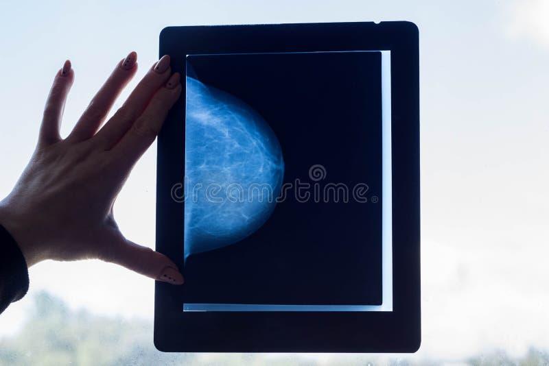 El doctor mira una imagen de la mamografía del pecho fotos de archivo libres de regalías