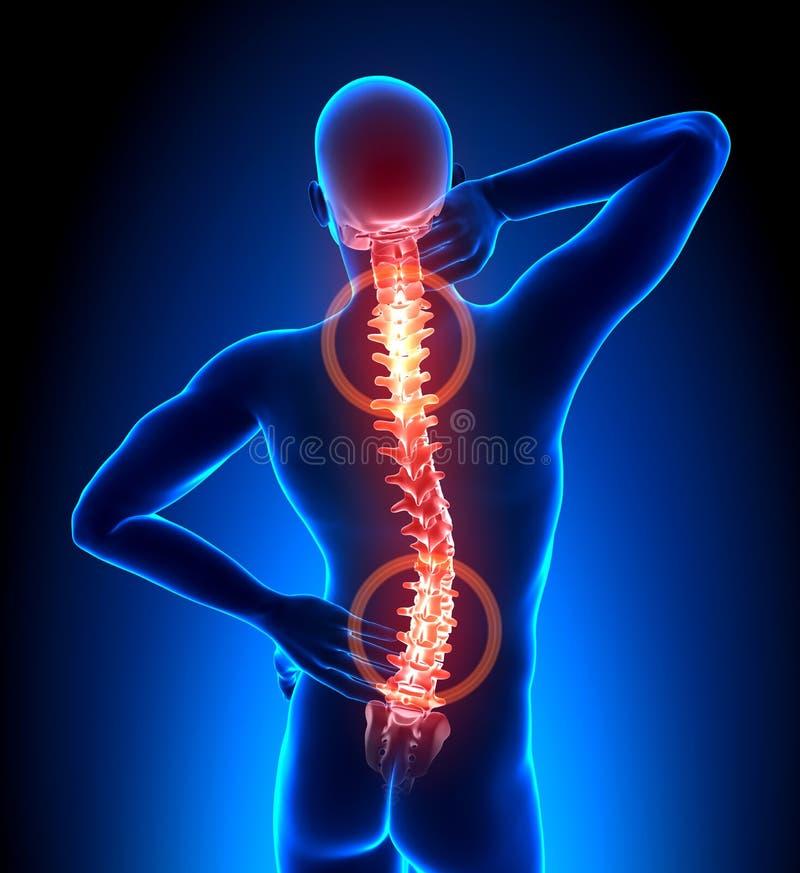 Espina dorsal lastimada del varón - dolor de las vértebras libre illustration