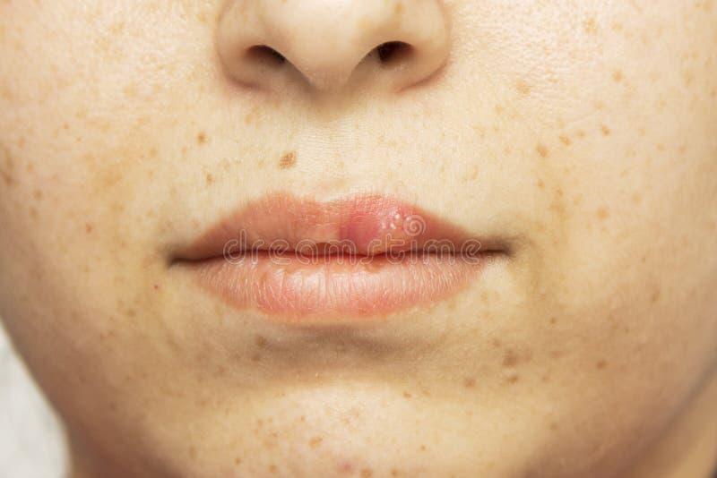 El dolor frío oral del herpes ampolla en el herpes simple de los labios fotos de archivo libres de regalías