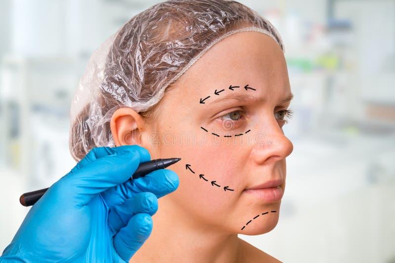 El drenaje del doctor de la cirugía plástica alinea con el marcador en cara paciente foto de archivo