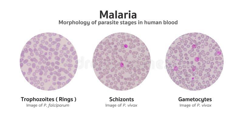 El examen microscópico de las películas de sangre de la malaria infectó la palmadita stock de ilustración