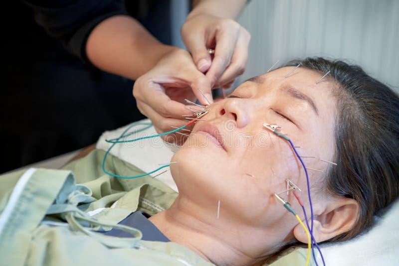 El experimentar asiático de la mujer del tratamiento de la cara de la belleza de la acupuntura por e imagen de archivo libre de regalías