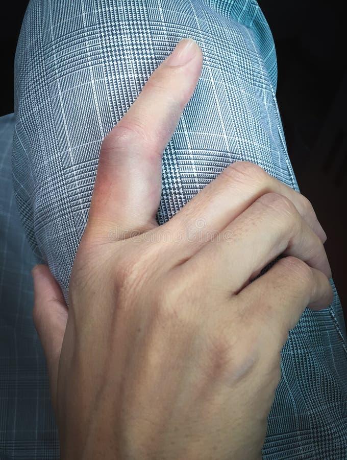 El finger femenino fue hinchado imagen de archivo