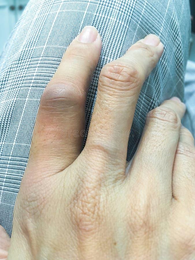 El finger femenino fue hinchado foto de archivo libre de regalías