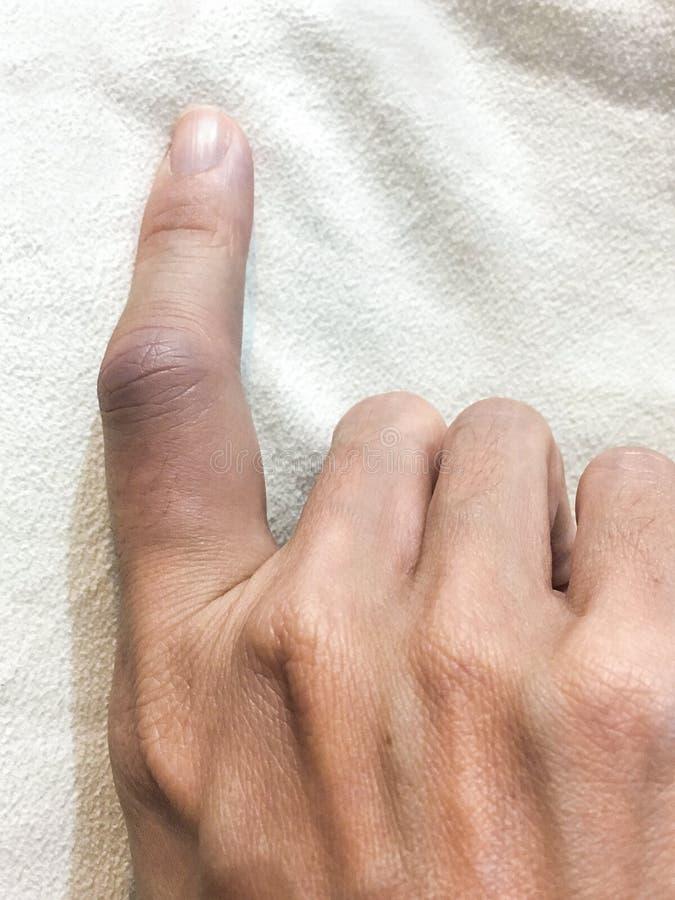 El finger femenino fue hinchado imagen de archivo libre de regalías