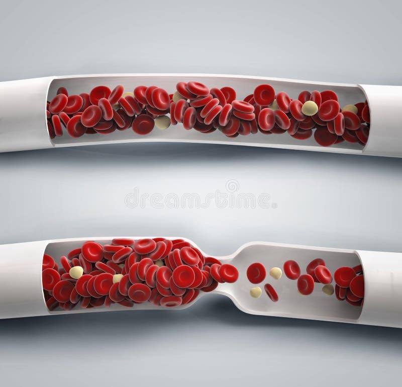 El fluir de la sangre y coágulo de sangre stock de ilustración