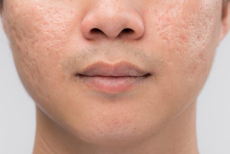 El hombre con la piel y el acné aceitosos marca con una cicatriz en el fondo blanco foto de archivo