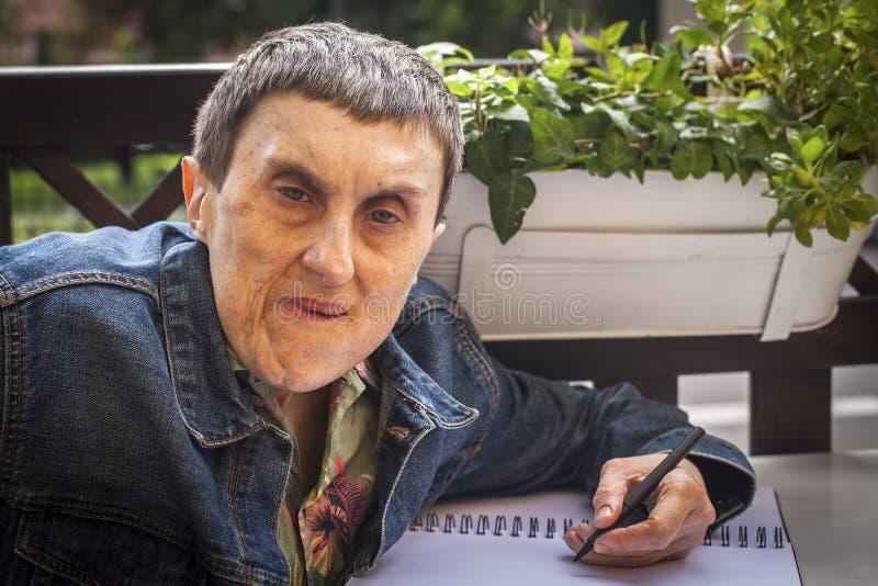 El hombre discapacitado con parálisis cerebral escribe en un cuaderno imagenes de archivo