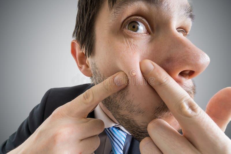 El hombre joven está exprimiendo la espinilla o el acné en su piel foto de archivo