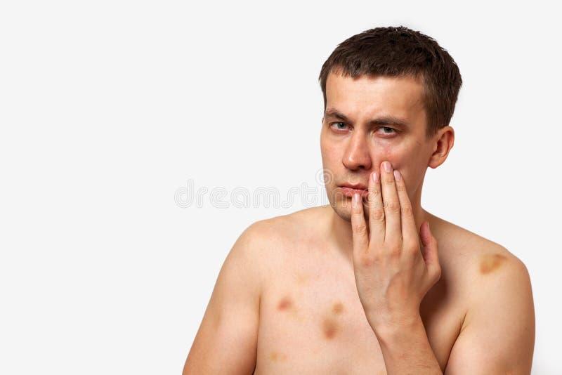 El hombre moreno con las contusiones en su cuerpo lleva a cabo la mano a su cabeza en dolor después de una lucha en un fondo aisl imagenes de archivo