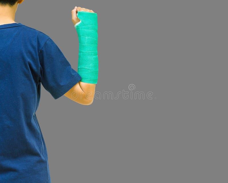 El hueso de brazo quebrado en verde echó en fondo gris foto de archivo