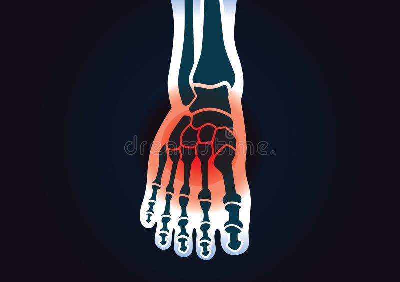 El hueso de pie humano tiene una señal roja stock de ilustración
