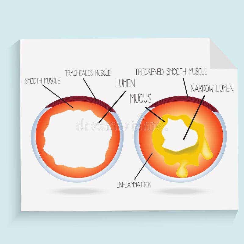 El lumen normal del bronquio y del bronquio se inflama con moco libre illustration