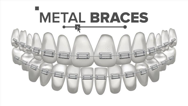 El metal apoya vector Quijada humana Paréntesis en los dientes Sonrisa con los apoyos ejemplo aislado realista 3D ilustración del vector