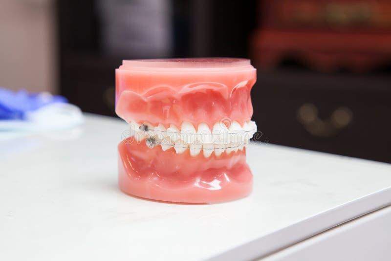 El modelo de los dientes de la demostración del dentista de variedades de soporte ortodóntico o del apoyo con rosa de la carne en fotos de archivo libres de regalías