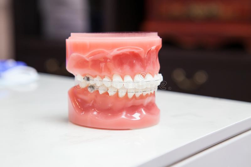 El modelo de los dientes de la demostración del dentista de variedades de soporte ortodóntico o del apoyo con rosa de la carne en foto de archivo
