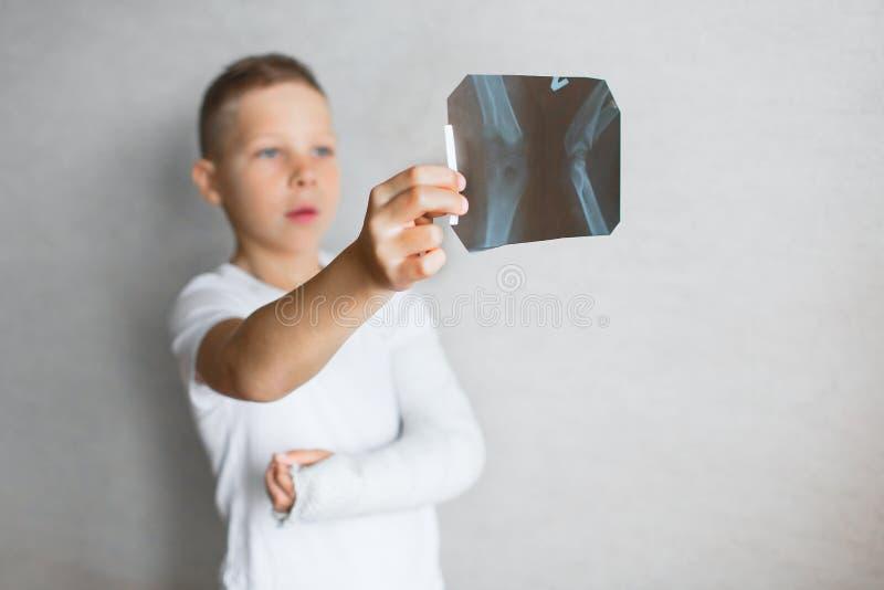 El muchacho con una mano quebrada mira la radiografía Radiografía en las manos de un muchacho triste con un brazo quebrado foto de archivo libre de regalías