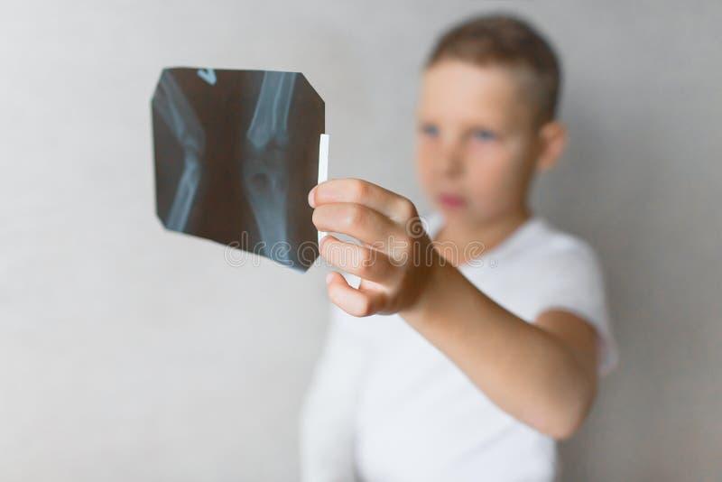 El muchacho con una mano quebrada mira la radiografía Radiografía en las manos de un muchacho triste con un brazo quebrado fotos de archivo