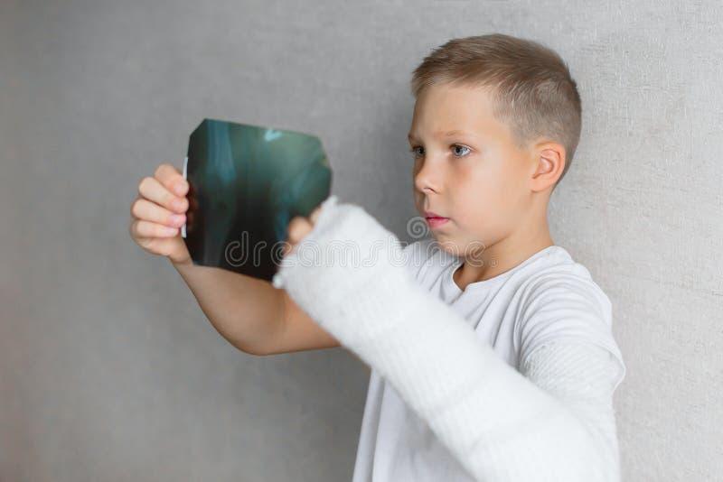 El muchacho con una mano quebrada mira la radiografía Radiografía en las manos de un muchacho triste con un brazo quebrado fotos de archivo libres de regalías
