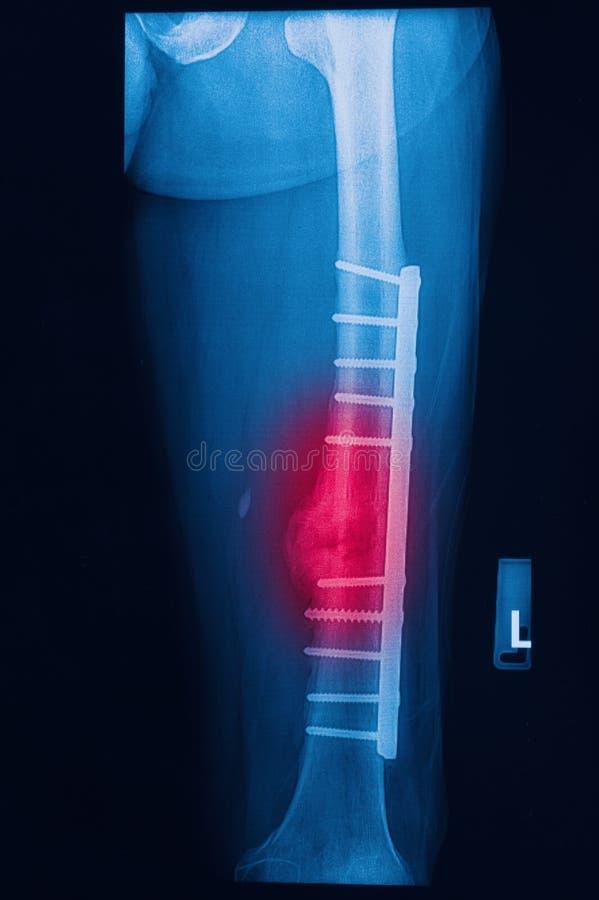 El muslo humano quebrado radiografía imagen con el implante fotos de archivo