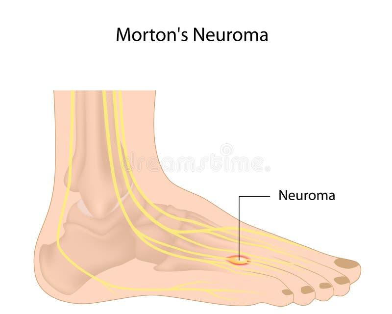 El neuroma de Morton ilustración del vector