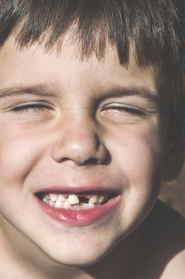 El niño muestra los dientes que falta imagenes de archivo