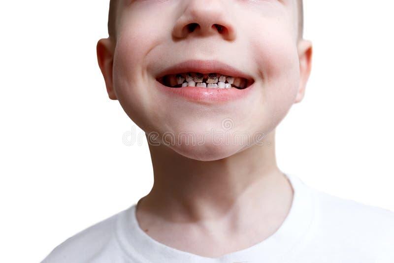 El niño pequeño en camiseta sonríe y muestra sus dientes destruidos por la carie Atenci?n sanitaria, higiene dental y concepto de foto de archivo libre de regalías