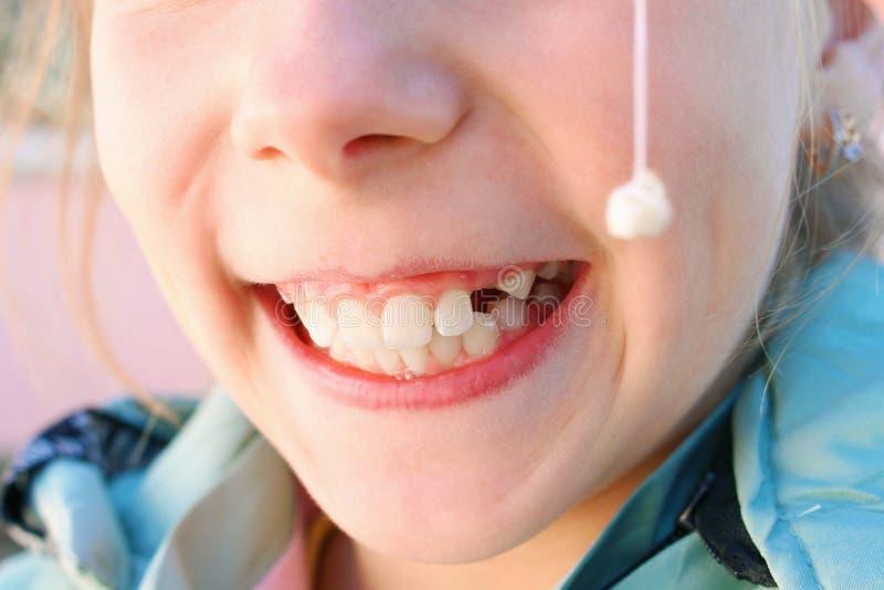 El niño sacó el diente de leche con el hilo imagenes de archivo