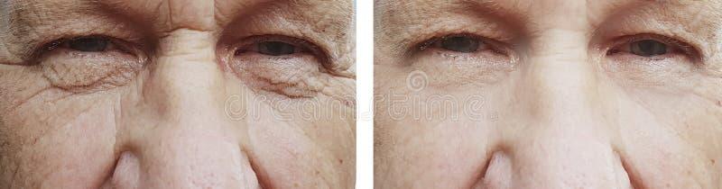 el ojo del viejo hombre arruga antes despu?s del rejuvenecimiento del tratamiento fotos de archivo