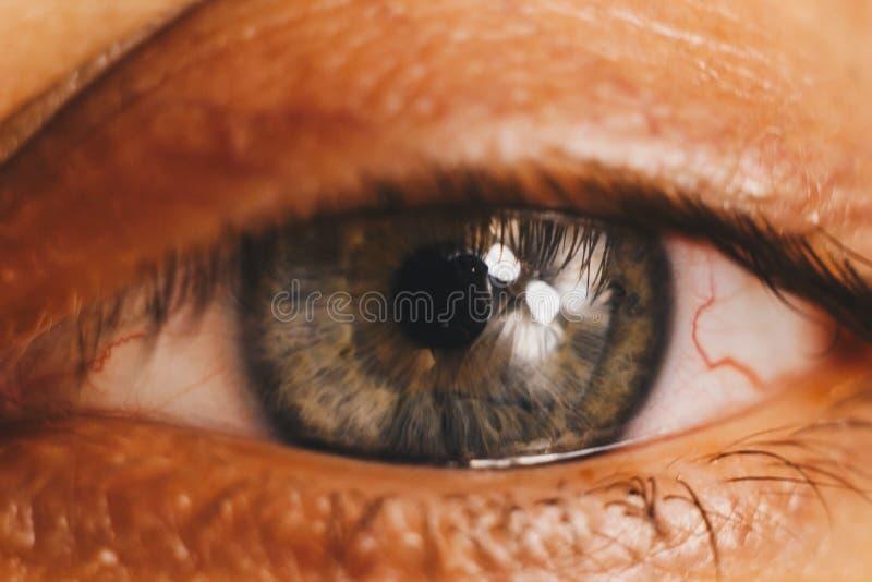 El ojo humano abierto con las arterias rojas brillantes se cierra para arriba irritación y rojez del globo del ojo alumnos, iris, foto de archivo