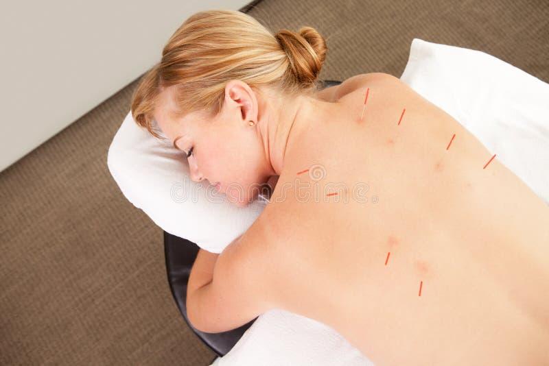 El paciente femenino con las agujas de la acupuntura adentro mueve hacia atrás imágenes de archivo libres de regalías