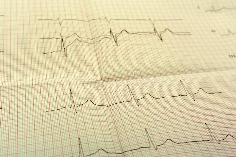 El papel de EGGor ECG el ECG es el resultado de la prueba de tensión y de la forma rosada del corazón fuera de píldoras El paquet fotos de archivo