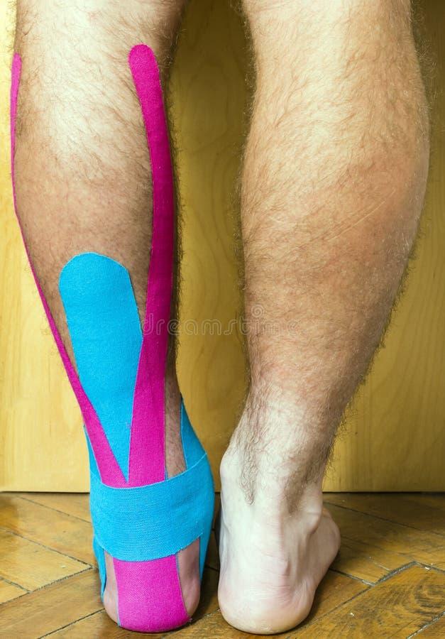 El pie con una herida cubierta con la cinta usada en el therapeu elástico fotografía de archivo