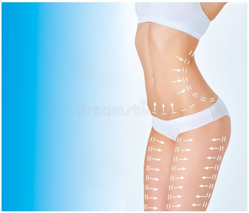 El plan del retiro de las celulitis Marcas blancas en cuerpo de la mujer joven foto de archivo libre de regalías