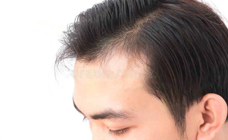El problema de la pérdida de pelo de la preocupación del hombre joven para el champú de la atención sanitaria y sea fotos de archivo libres de regalías